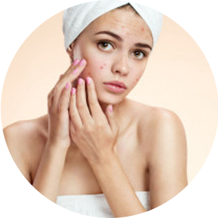 Treating Moderate to Severe Acne